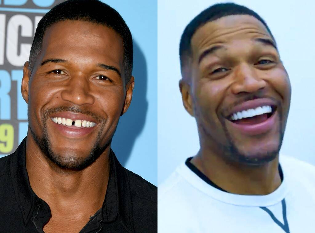Michael Strahan Gets Rid Of His Iconic Tooth Gap – Check Out The Video!